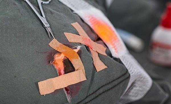 怪我で血がついた服に貼られた絆創膏
